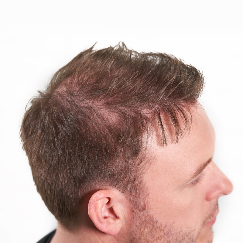 Nanogen Man with thinning hair
